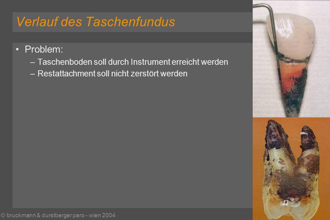 © bruckmann & durstberger paro - wien 2004 Verlauf des Taschenfundus Problem: –Taschenboden soll durch Instrument erreicht werden –Restattachment soll nicht zerstört werden
