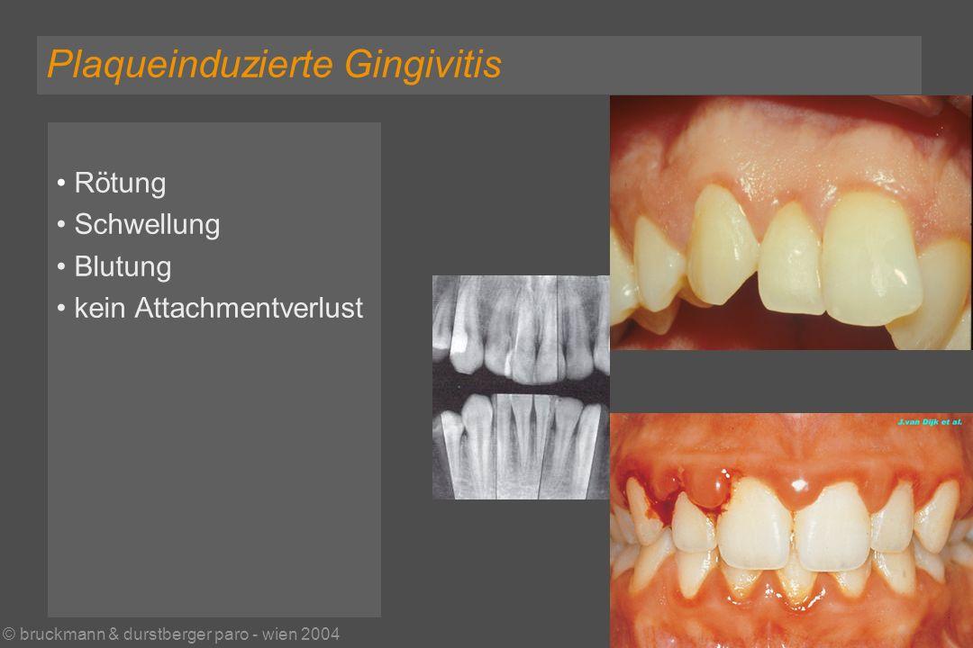 © bruckmann & durstberger paro - wien 2004 Rötung Schwellung Blutung kein Attachmentverlust Plaqueinduzierte Gingivitis