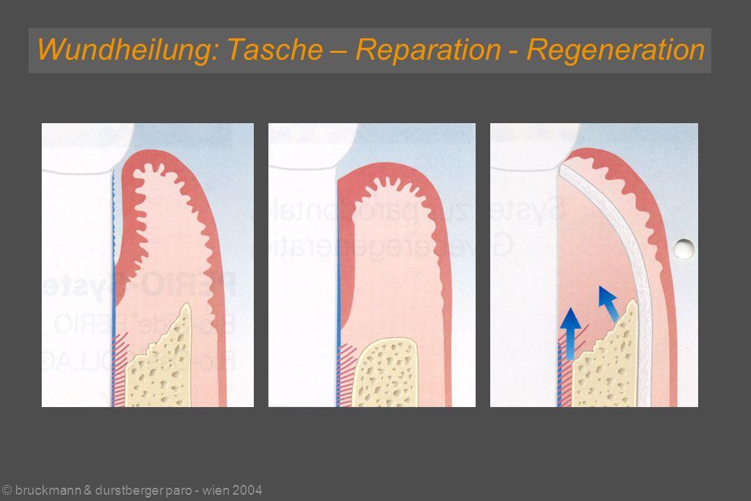 © bruckmann & durstberger paro - wien 2004 Wundheilung: Tasche – Reparation - Regeneration