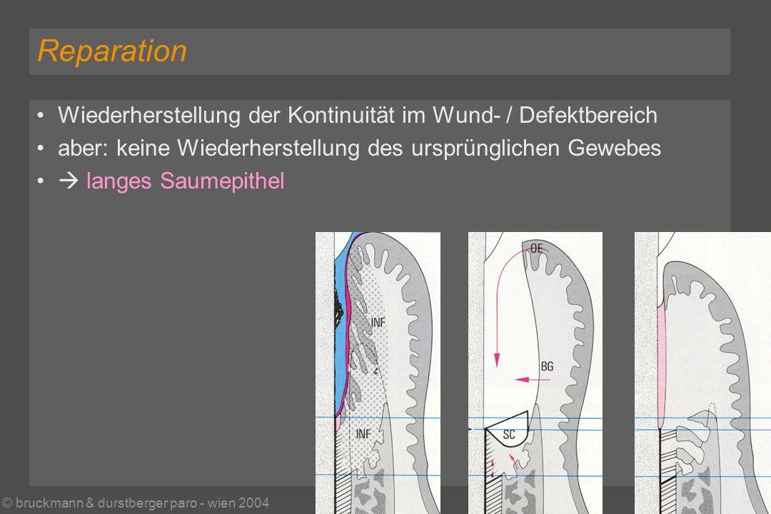 © bruckmann & durstberger paro - wien 2004 Reparation Wiederherstellung der Kontinuität im Wund- / Defektbereich aber: keine Wiederherstellung des ursprünglichen Gewebes langes Saumepithel