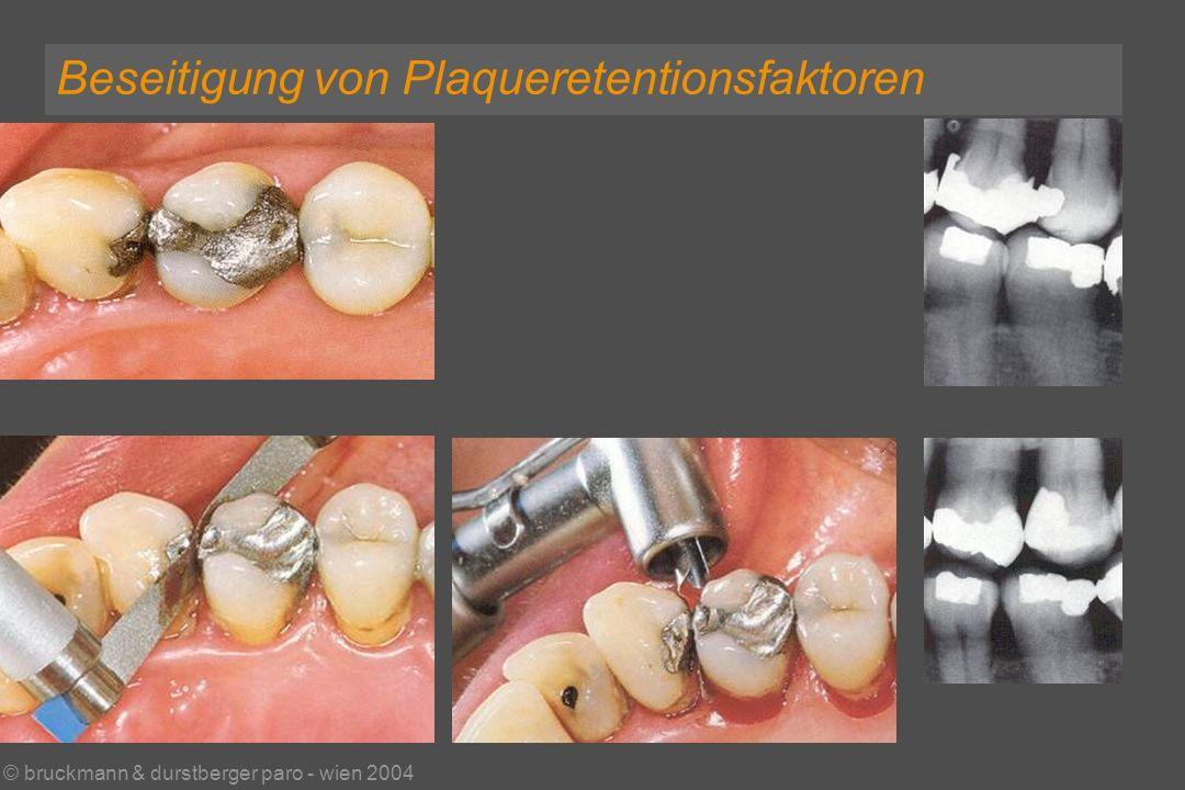 © bruckmann & durstberger paro - wien 2004 Beseitigung von Plaqueretentionsfaktoren