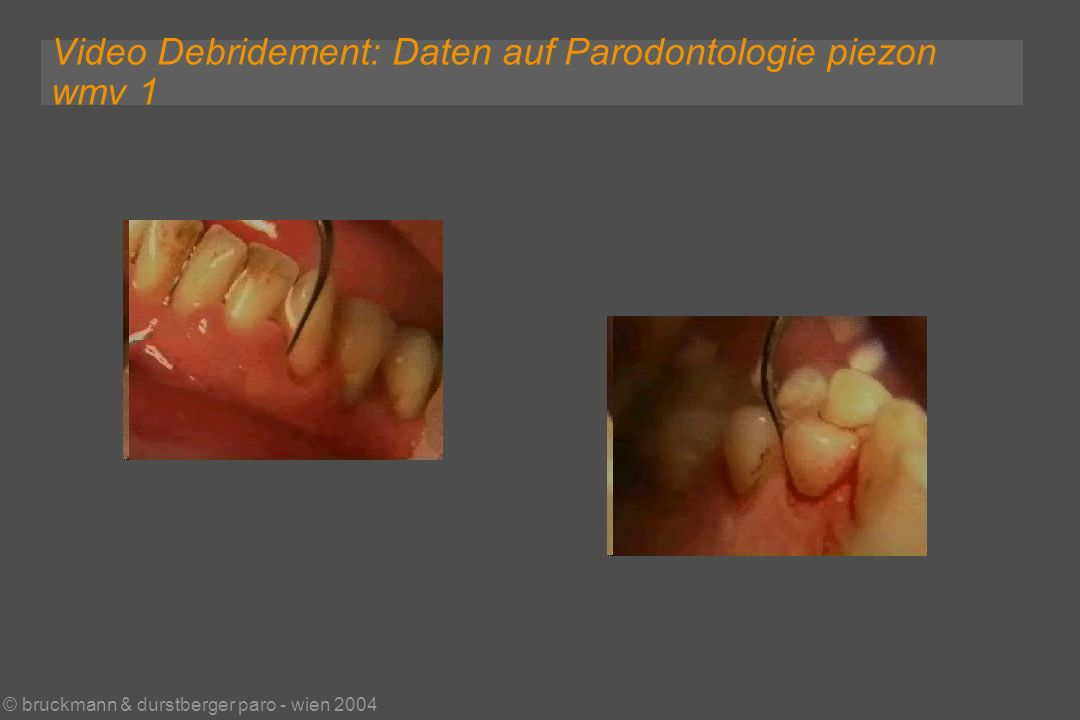 © bruckmann & durstberger paro - wien 2004 Video Debridement: Daten auf Parodontologie piezon wmv 1