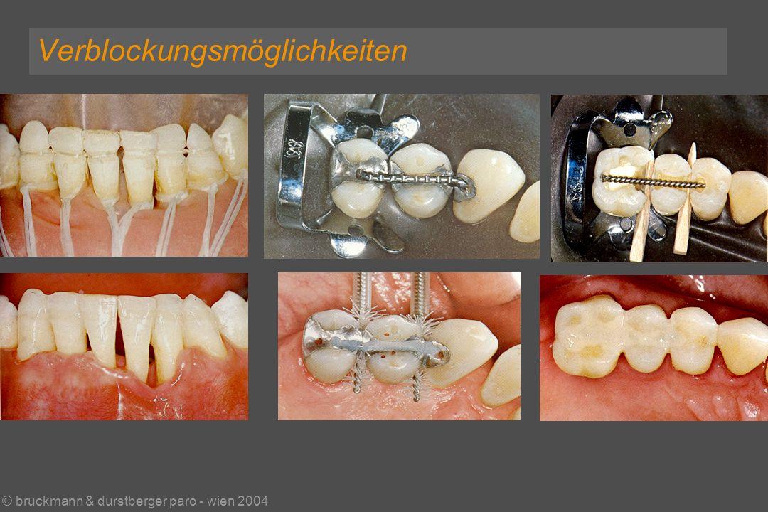 © bruckmann & durstberger paro - wien 2004 Verblockungsmöglichkeiten