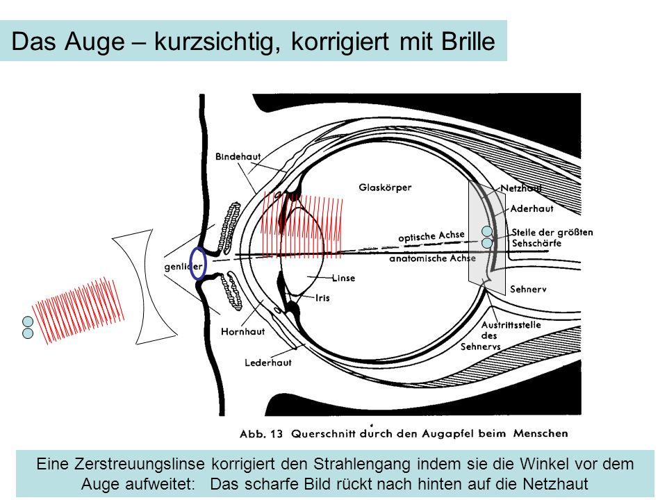 Das Auge – kurzsichtig, korrigiert mit Brille Eine Zerstreuungslinse korrigiert den Strahlengang indem sie die Winkel vor dem Auge aufweitet: Das scha