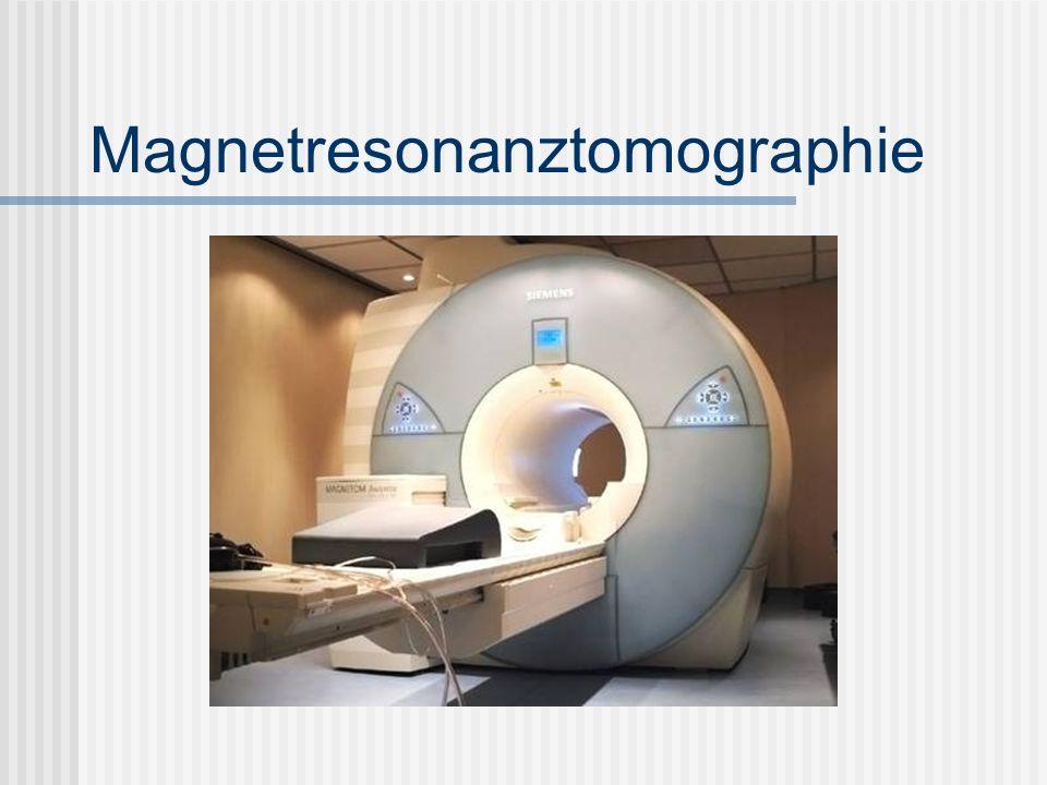 Inhaltsverzeichnis Einleitung Thema Kernspintomographie --------> David Historische Daten ( Erfinder etc.) -------> Daniel Technischer Aufbau der MRT- Gerätes -------> David - Erklärung Kernspin -------> David Funktionelle Erklärung Kernspintomographie -------> David Medizinische Nutzen -------> Daniel Vorteile/Nachteile des MRT (Tabelle) -------> Daniel Untersuchungsdauer eines MRT -------> David Vergleich MRT ; Röntgen u.Ä.
