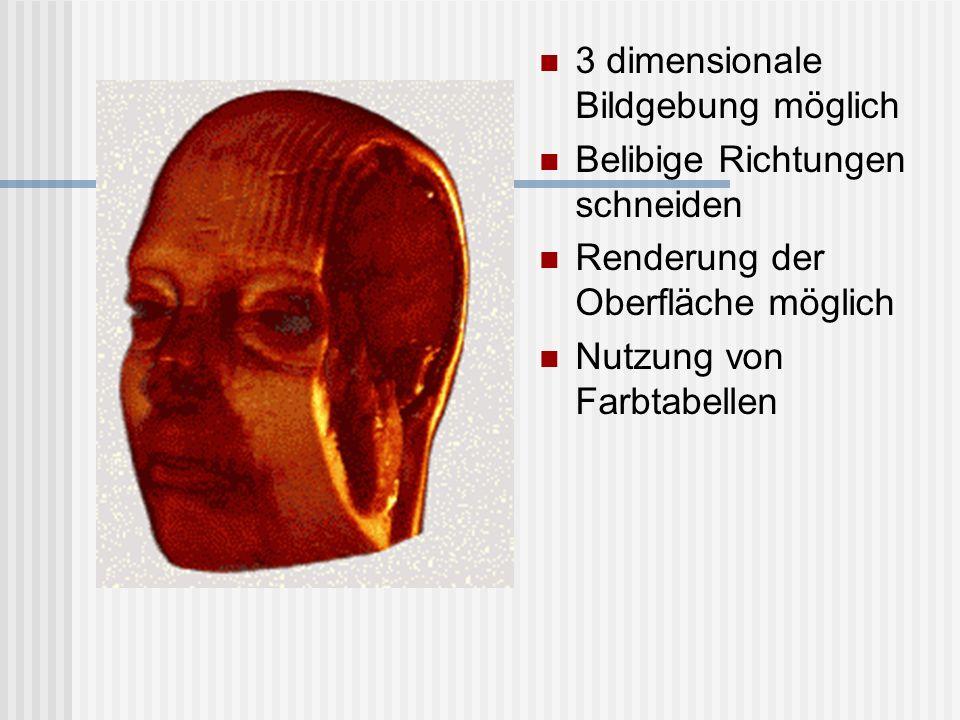 3 dimensionale Bildgebung möglich Belibige Richtungen schneiden Renderung der Oberfläche möglich Nutzung von Farbtabellen