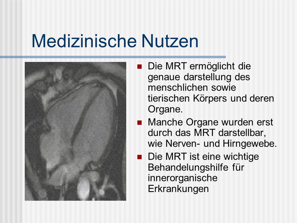 Des weiteren wurden mithilfe der MRT neue Erkentnisse und wichtige Fortschritte im Berreich der Gehirnforschung gewonnen Man erhielt neue Möglichkeiten in der Erforschung, des Verlauf von menschlichen Gehirnströmen Auch bei Knochenbrüchen ist die MRT eine deutlich vorteilhaftere Behandelungsmethode als der Röntgen (siehe Vorteile und Nachteile)