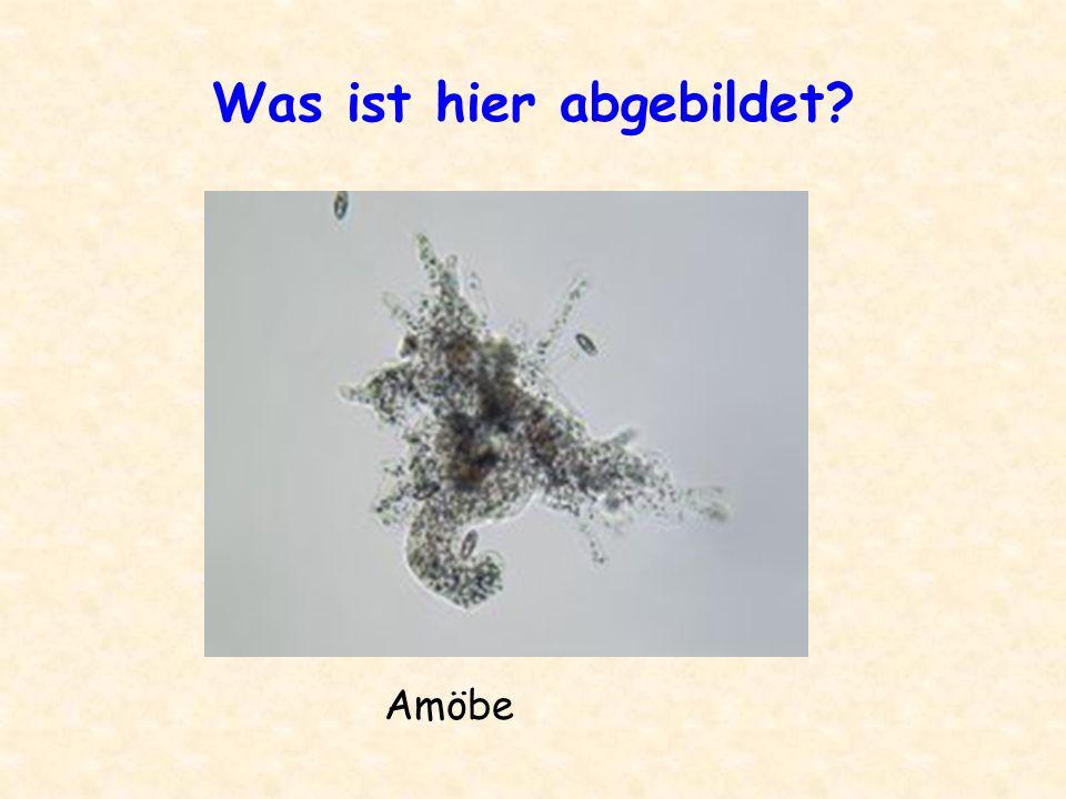 Was ist hier abgebildet? Amöbe