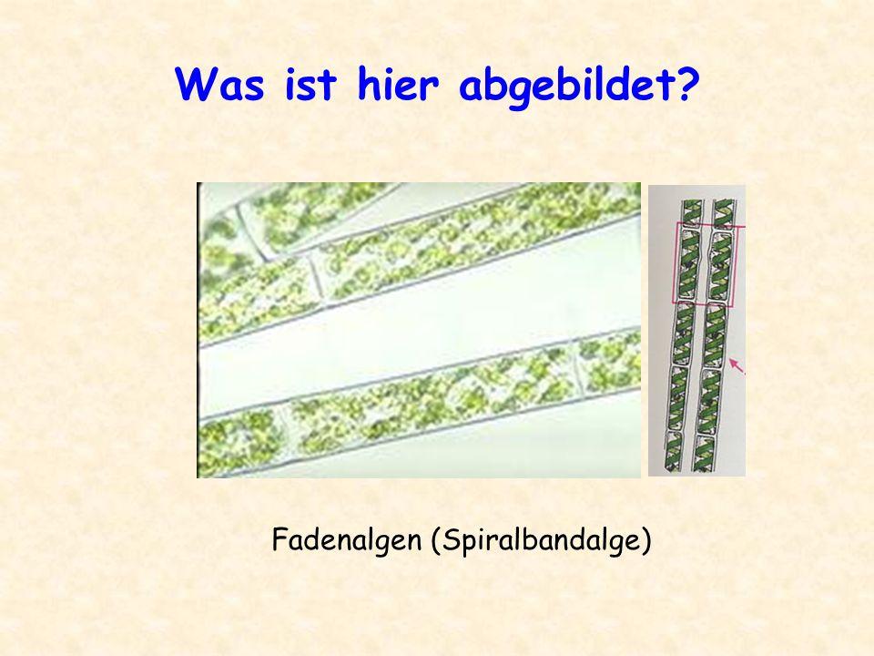 Was ist hier abgebildet? pflanzliche Zellen mit Chloroplasten