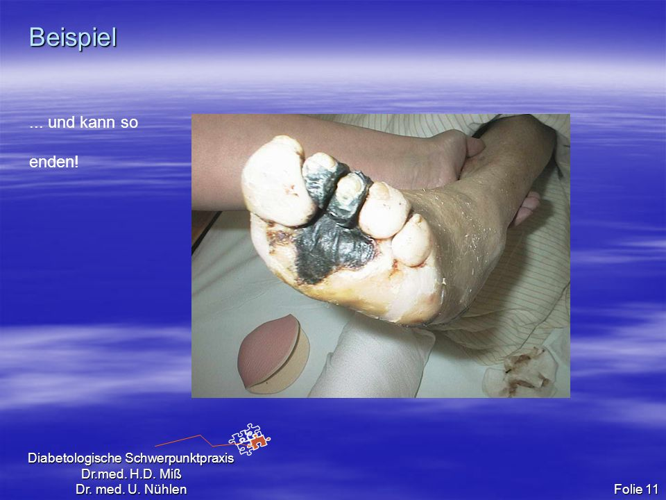 Diabetologische Schwerpunktpraxis Dr.med. H.D. Miß Dr. med. U. Nühlen Folie 11 Beispiel... und kann so enden!