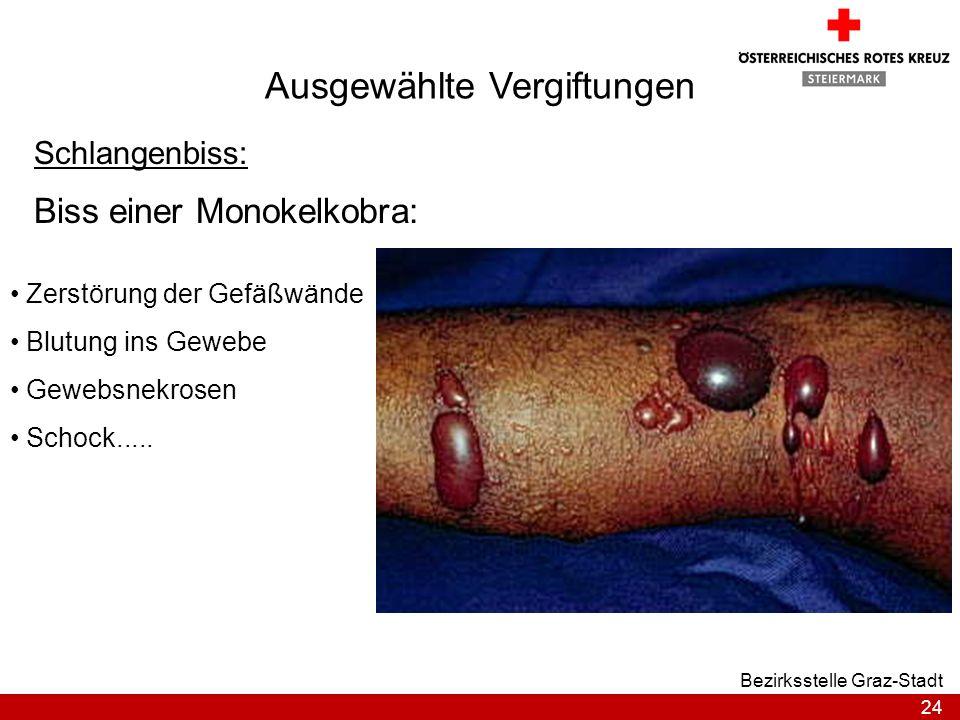 24 Bezirksstelle Graz-Stadt Ausgewählte Vergiftungen Schlangenbiss: Biss einer Monokelkobra: Zerstörung der Gefäßwände Blutung ins Gewebe Gewebsnekros