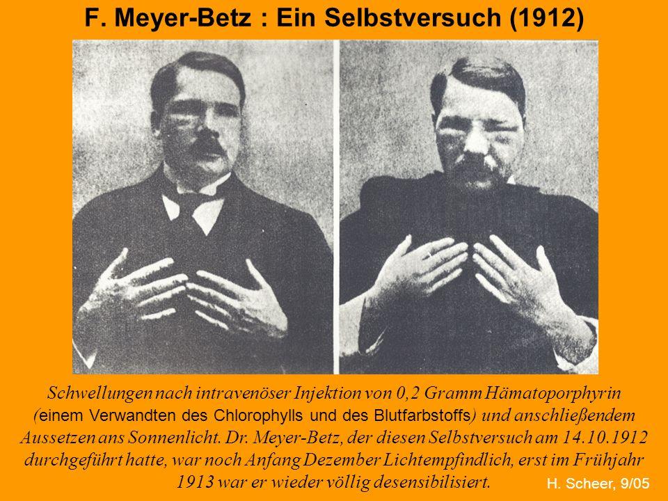 H. Scheer F. Meyer-Betz : Ein Selbstversuch (1912) Schwellungen nach intravenöser Injektion von 0,2 Gramm Hämatoporphyrin ( einem Verwandten des Chlor