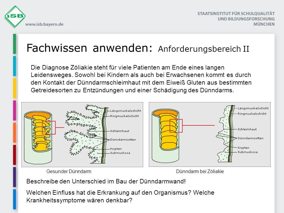 Fachwissen anwenden: Anforderungsbereich II Beschreibe den Unterschied im Bau der Dünndarmwand! Welchen Einfluss hat die Erkrankung auf den Organismus