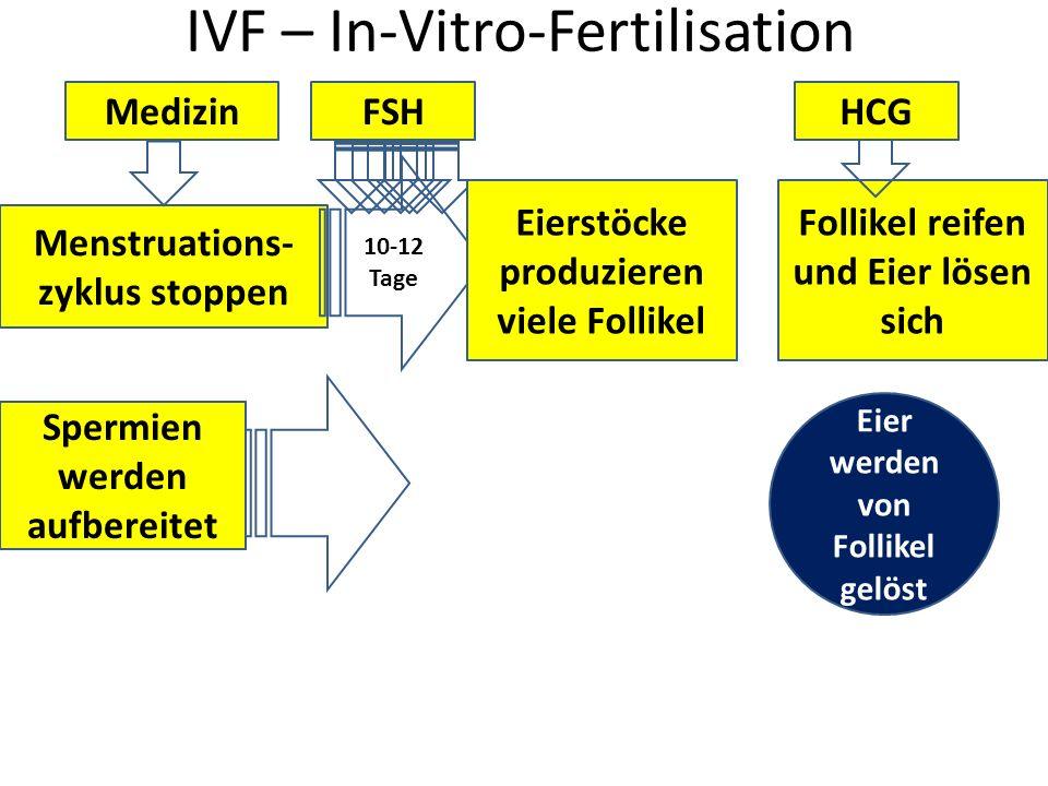 IVF – In-Vitro-Fertilisation Menstruations- zyklus stoppen Medizin 10-12 Tage FSH Eierstöcke produzieren viele Follikel Follikel reifen und Eier lösen
