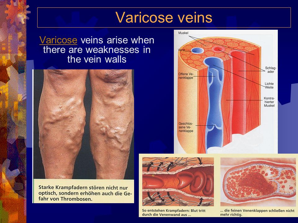 Valves allow blood to go forward... …but not backward valve open muscles contracted valve closed valve open muscles relaxed valve closed