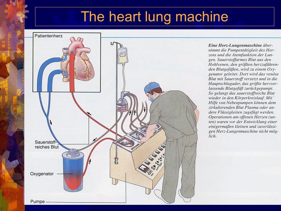Das Elektrokardiogramm (EKG) Die P-Zacke beschreibt die Erregung im Vorhofgebiet, QRS- Zacken entstehen als Folge der Ausbreitung der Erregung über di