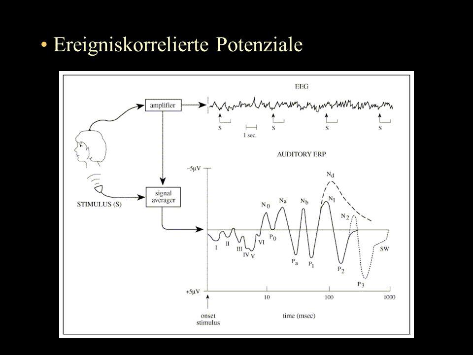 Präsentation von Sätzen mit emotionalem Gehalt auf Monitor (emotion induction technique).