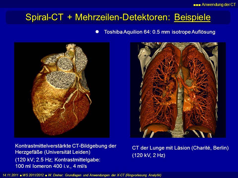 Anwendung der CT 14.11.2011 WS 2011/2012 W. Dreher: Grundlagen und Anwendungen der X-CT (Ringvorlesung Analytik) Spiral-CT + Mehrzeilen-Detektoren: Be