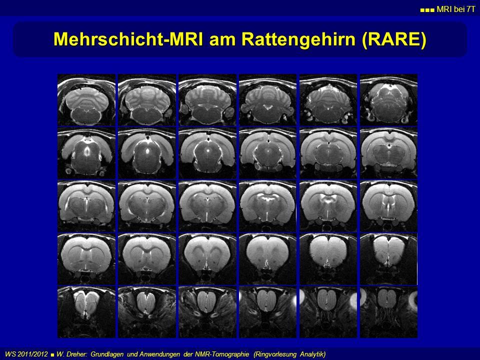 MRI bei 7T WS 2011/2012 W. Dreher: Grundlagen und Anwendungen der NMR-Tomographie (Ringvorlesung Analytik) Mehrschicht-MRI am Rattengehirn (RARE)
