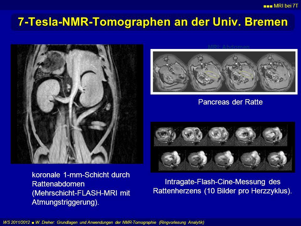 MRI bei 7T WS 2011/2012 W. Dreher: Grundlagen und Anwendungen der NMR-Tomographie (Ringvorlesung Analytik) 7-Tesla-NMR-Tomographen an der Univ. Bremen