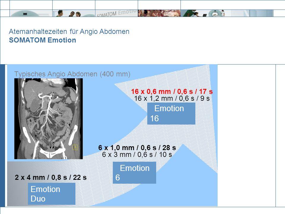 Emotion Duo 2 x 4 mm / 0,8 s / 22 s Emotion 6 6 x 1,0 mm / 0,6 s / 28 s 6 x 3 mm / 0,6 s / 10 s Emotion 16 16 x 0,6 mm / 0,6 s / 17 s 16 x 1,2 mm / 0,