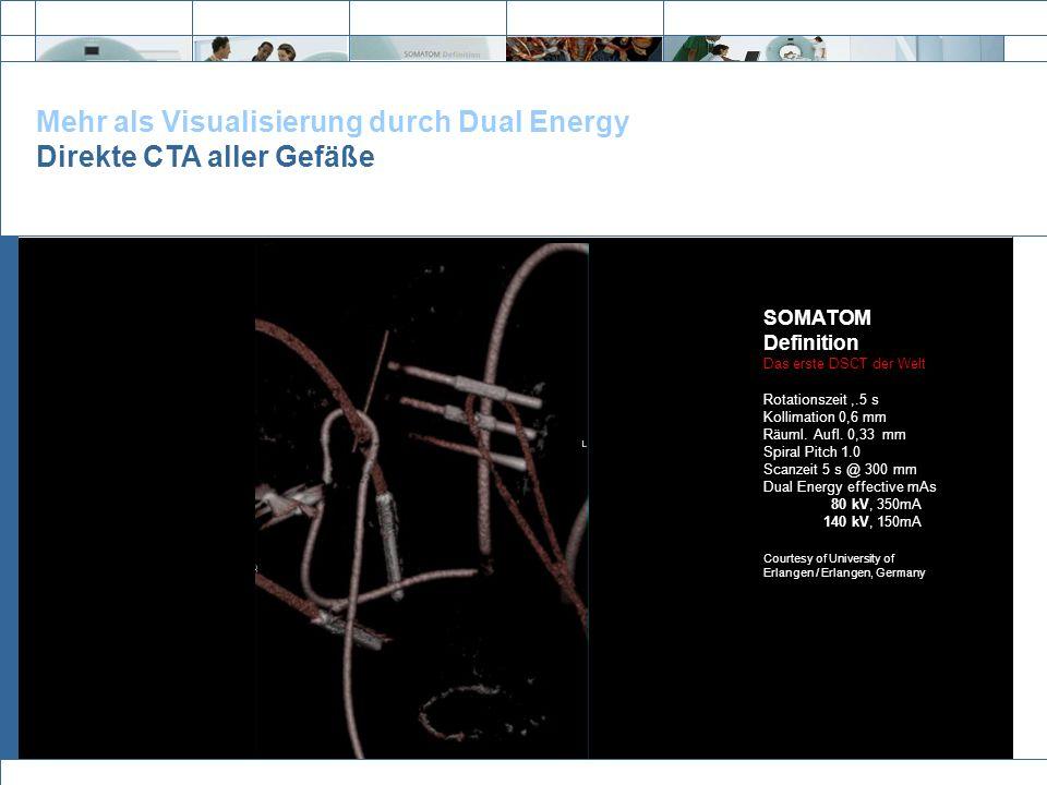 Exit Mehr als Visualisierung durch Dual Energy Direkte CTA aller Gefäße SOMATOM Definition Das erste DSCT der Welt Rotationszeit,.5 s Kollimation 0,6
