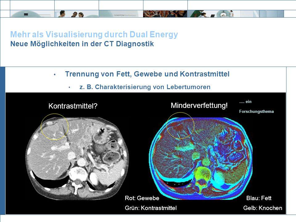Exit Mehr als Visualisierung durch Dual Energy Neue Möglichkeiten in der CT Diagnostik Trennung von Fett, Gewebe und Kontrastmittel z. B. Charakterisi