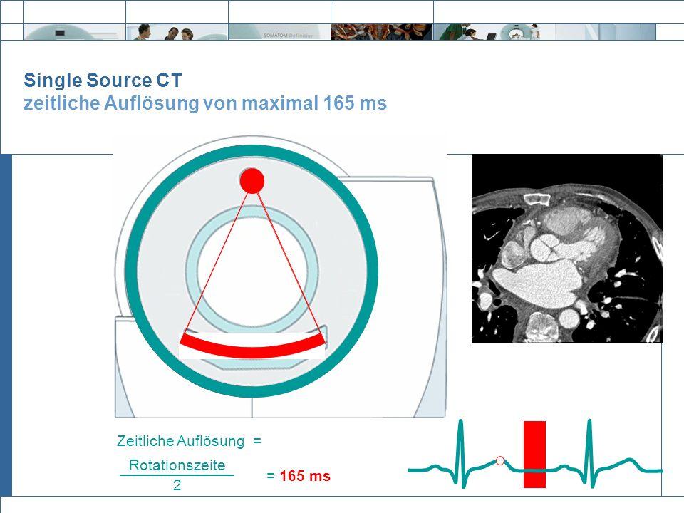 Exit Single Source CT zeitliche Auflösung von maximal 165 ms = 165 ms Rotationszeite 2 Zeitliche Auflösung =