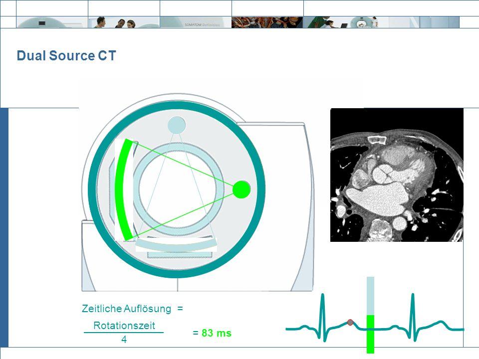 Exit = 83 ms Rotationszeit 4 Zeitliche Auflösung = Dual Source CT