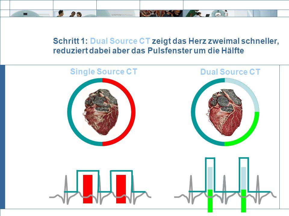 Exit Schritt 1: Dual Source CT zeigt das Herz zweimal schneller, reduziert dabei aber das Pulsfenster um die Hälfte Single Source CT Dual Source CT