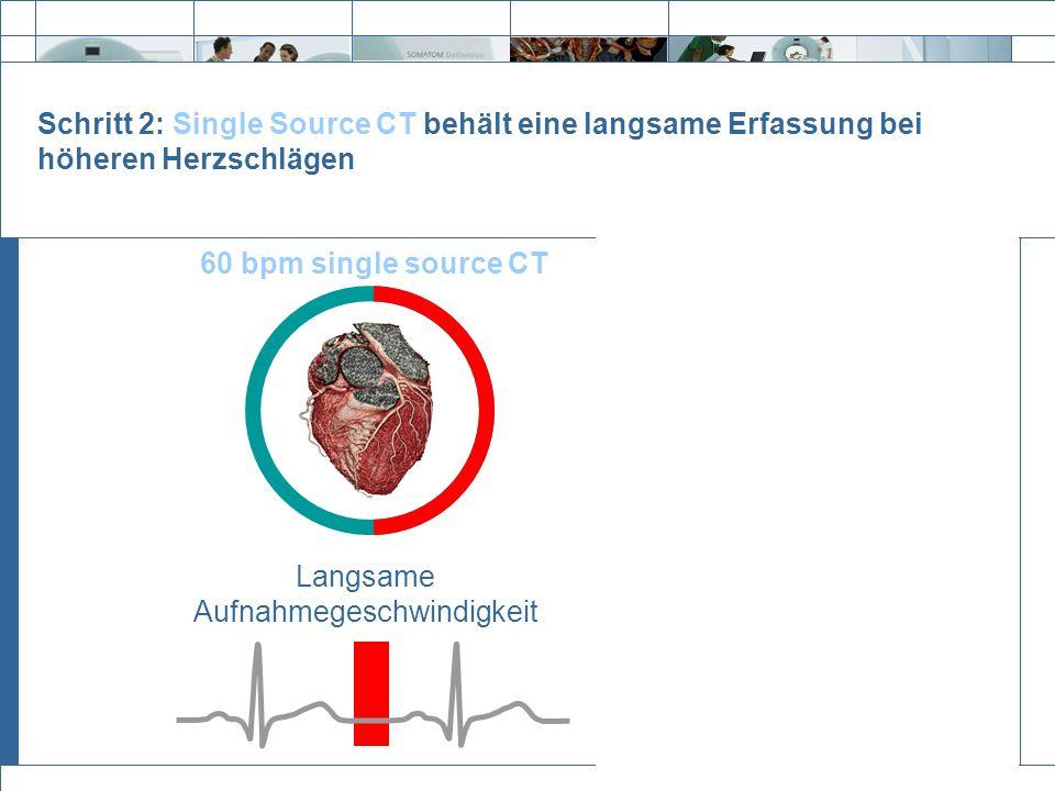 Exit Schritt 2: Single Source CT behält eine langsame Erfassung bei höheren Herzschlägen 60 bpm single source CT 100 bpm single source CT Langsame Auf