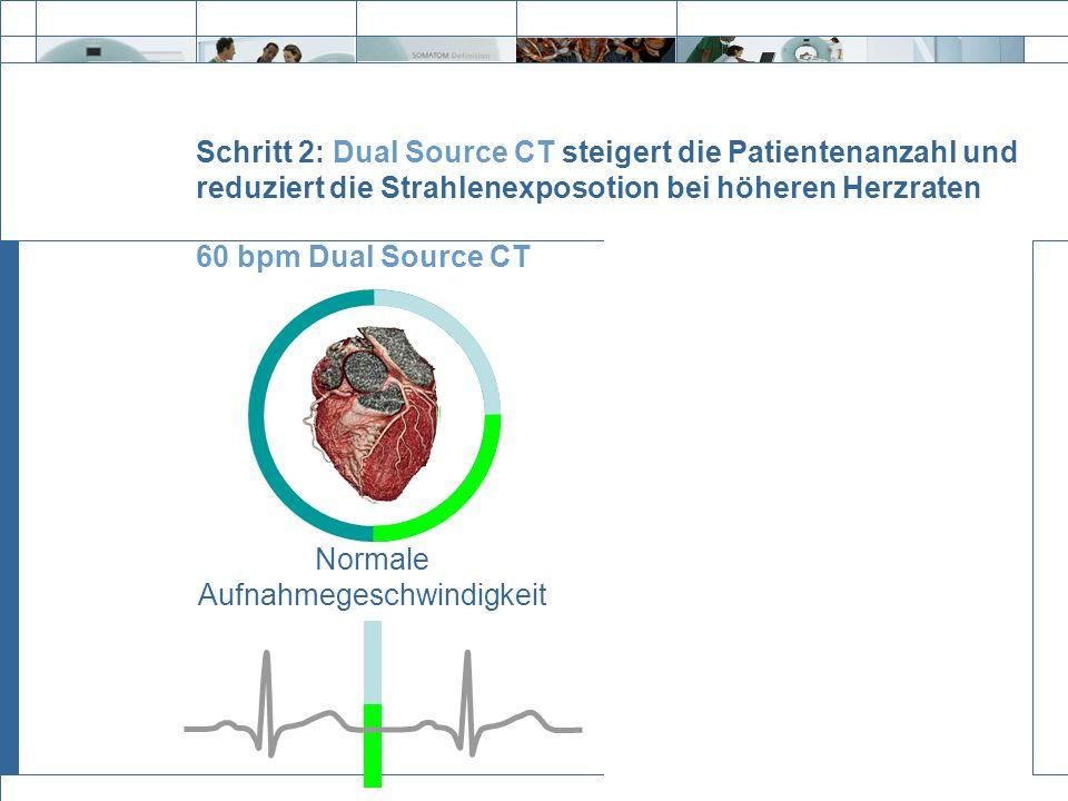 Exit Schritt 2: Dual Source CT steigert die Patientenanzahl und reduziert die Strahlenexposotion bei höheren Herzraten 60 bpm Dual Source CT 100 bpm D