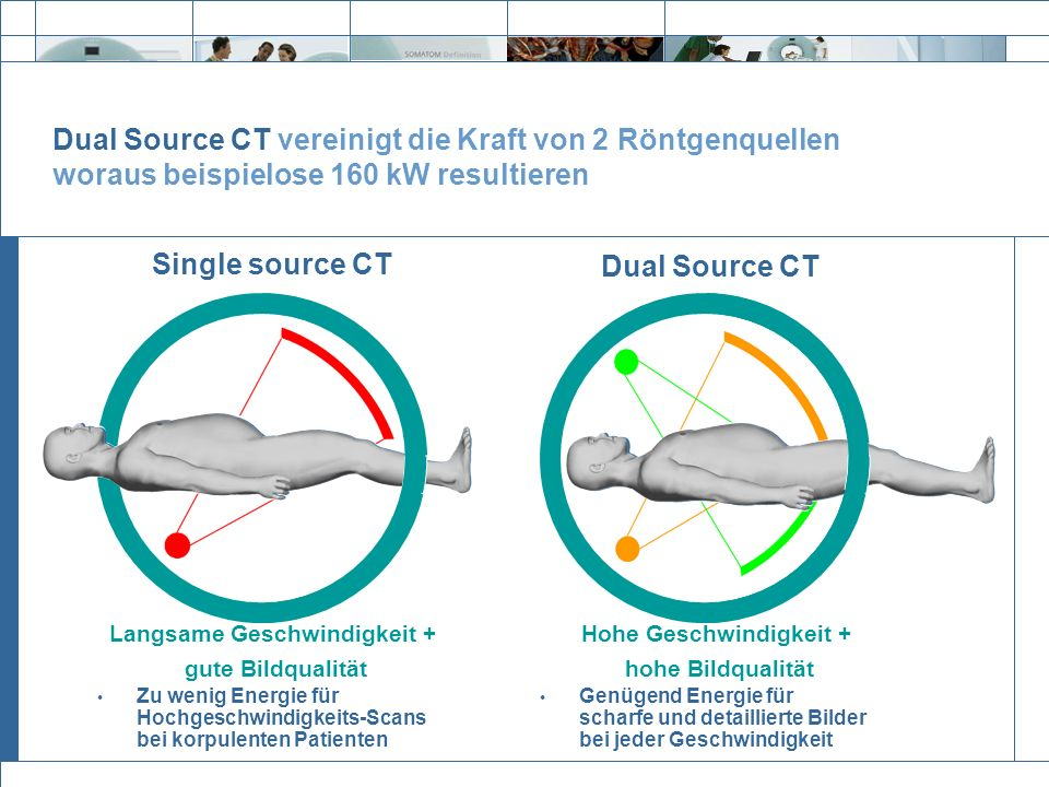 Exit Dual Source CT Genügend Energie für scharfe und detaillierte Bilder bei jeder Geschwindigkeit Dual Source CT vereinigt die Kraft von 2 Röntgenque
