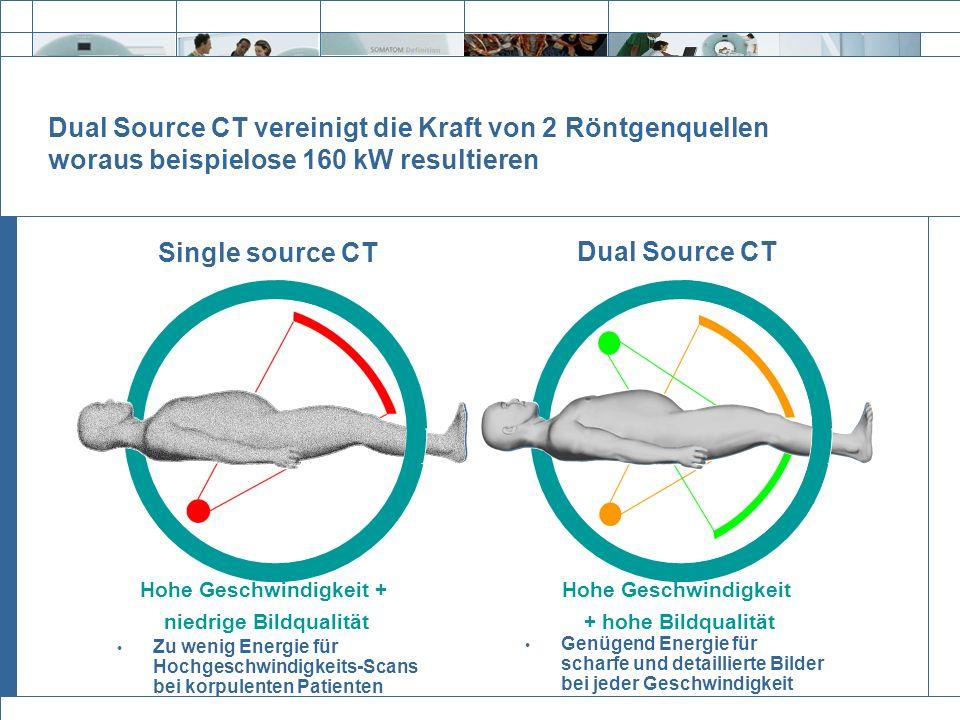 Exit Dual Source CT Single source CT Hohe Geschwindigkeit + niedrige Bildqualität Hohe Geschwindigkeit + hohe Bildqualität Dual Source CT vereinigt di
