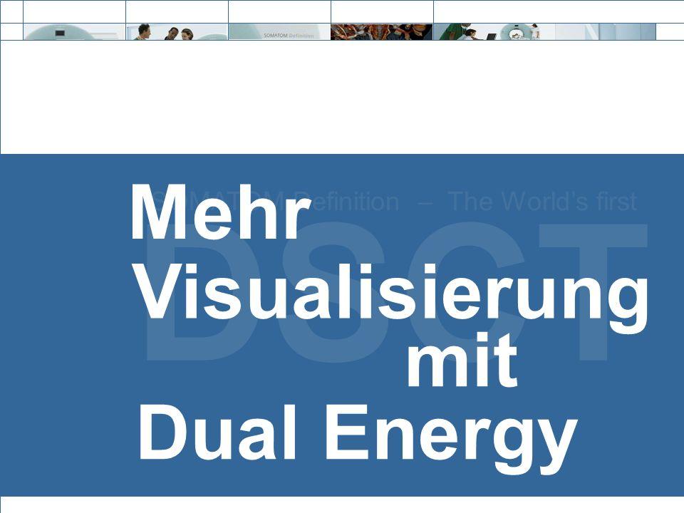 Exit DSCT SOMATOM Definition – The Worlds first Mehr mit Visualisierung Dual Energy