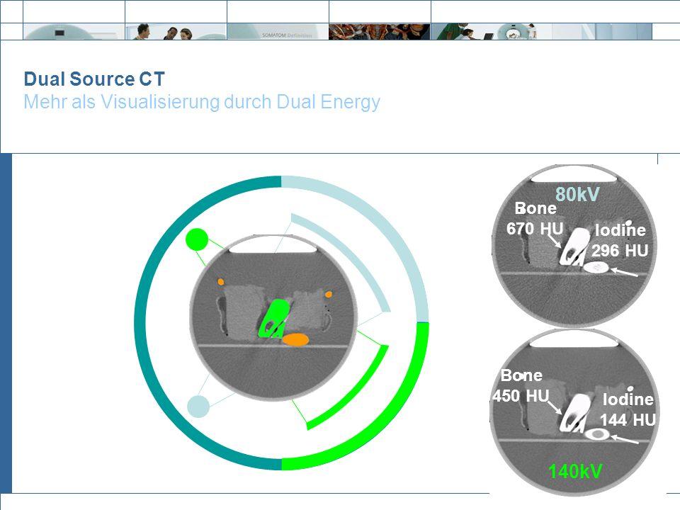 Exit Dual Source CT Mehr als Visualisierung durch Dual Energy 140kV Bone 450 HU Iodine 144 HU 80kV Bone 670 HU Iodine 296 HU