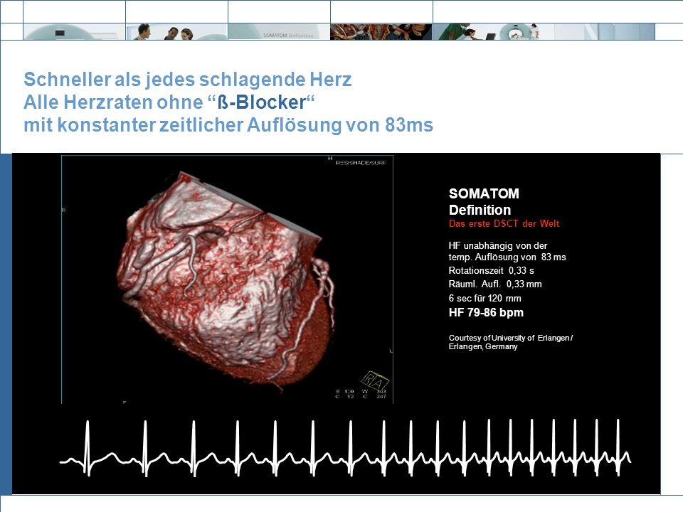 Exit Schneller als jedes schlagende Herz Alle Herzraten ohne ß-Blocker mit konstanter zeitlicher Auflösung von 83ms SOMATOM Definition Das erste DSCT