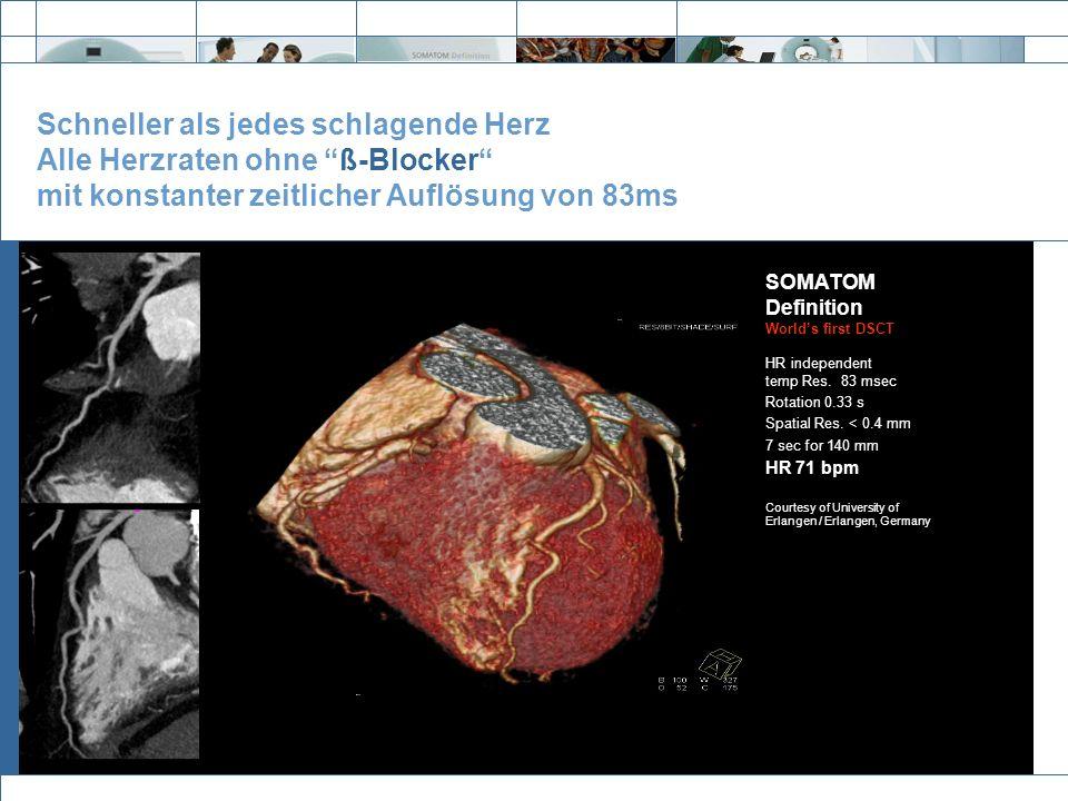 Exit Schneller als jedes schlagende Herz Alle Herzraten ohne ß-Blocker mit konstanter zeitlicher Auflösung von 83ms SOMATOM Definition Worlds first DS