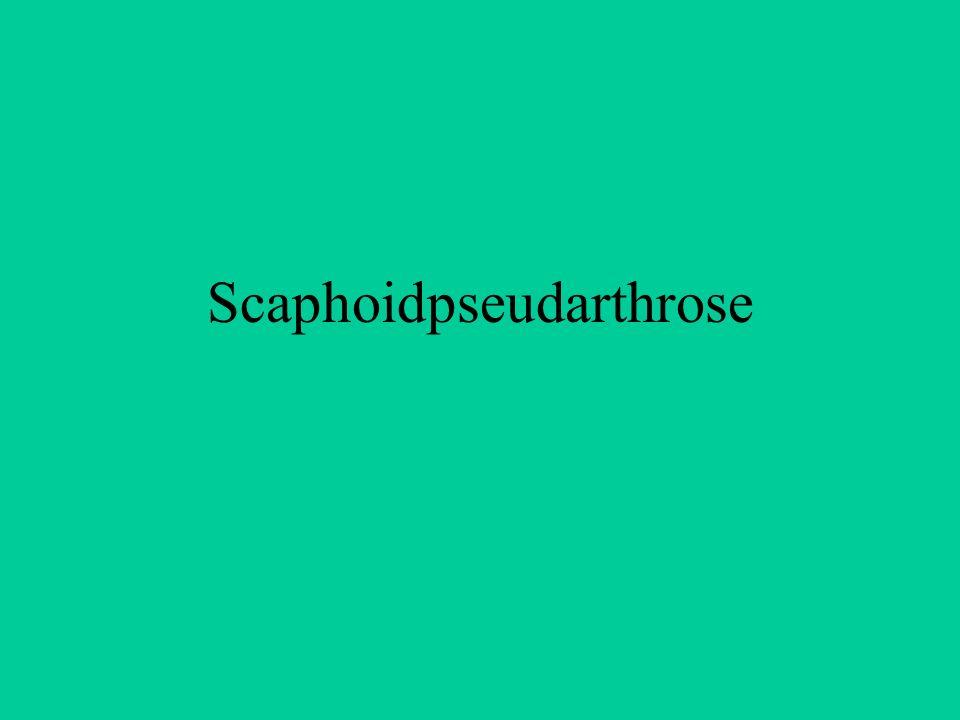 Die palmare Kippung des Scaphoidfragmentes führt zu einer Schliffarthrose zwischen diesem Fragment und Proc.styl.radii Die carpale Höhe vermindert sich durch die Dorsalkippung des lunatum(DISI-Stellung) Die Verminderung der carpalen Höhe beschreibt den karpalen Kollaps