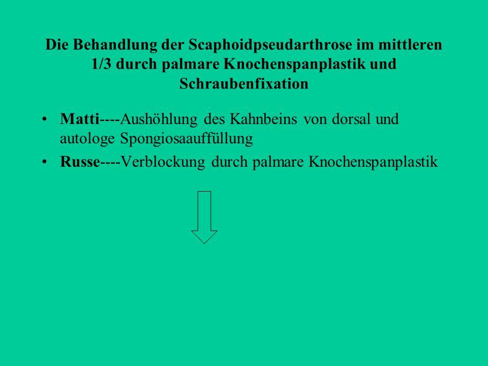 Die Behandlung der Scaphoidpseudarthrose im mittleren 1/3 durch palmare Knochenspanplastik und Schraubenfixation Matti----Aushöhlung des Kahnbeins von