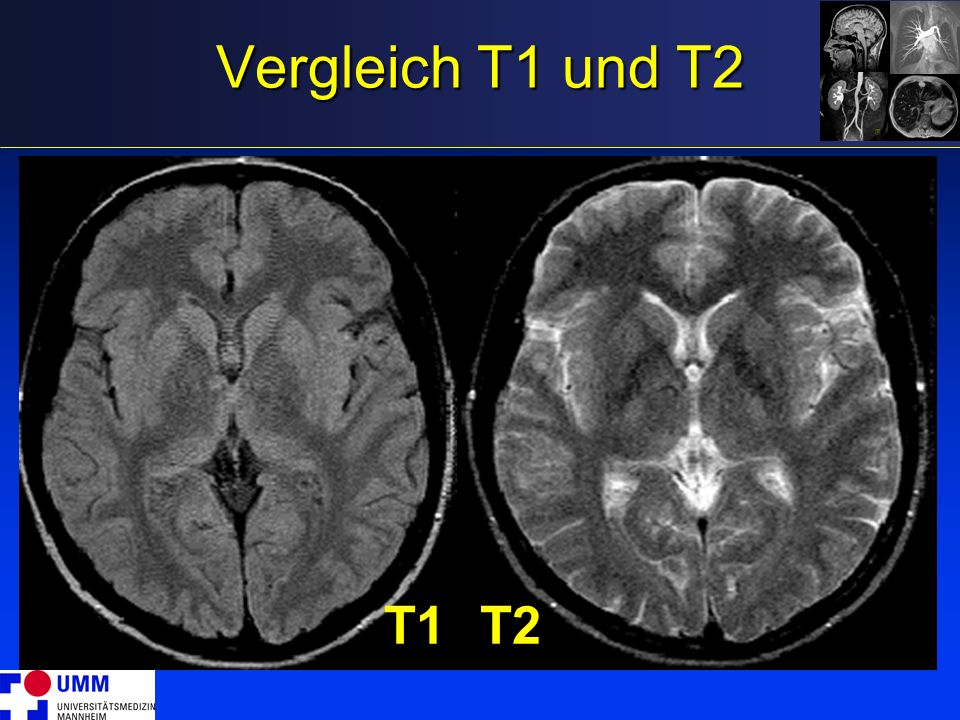 Vergleich T1 und T2 T1T2