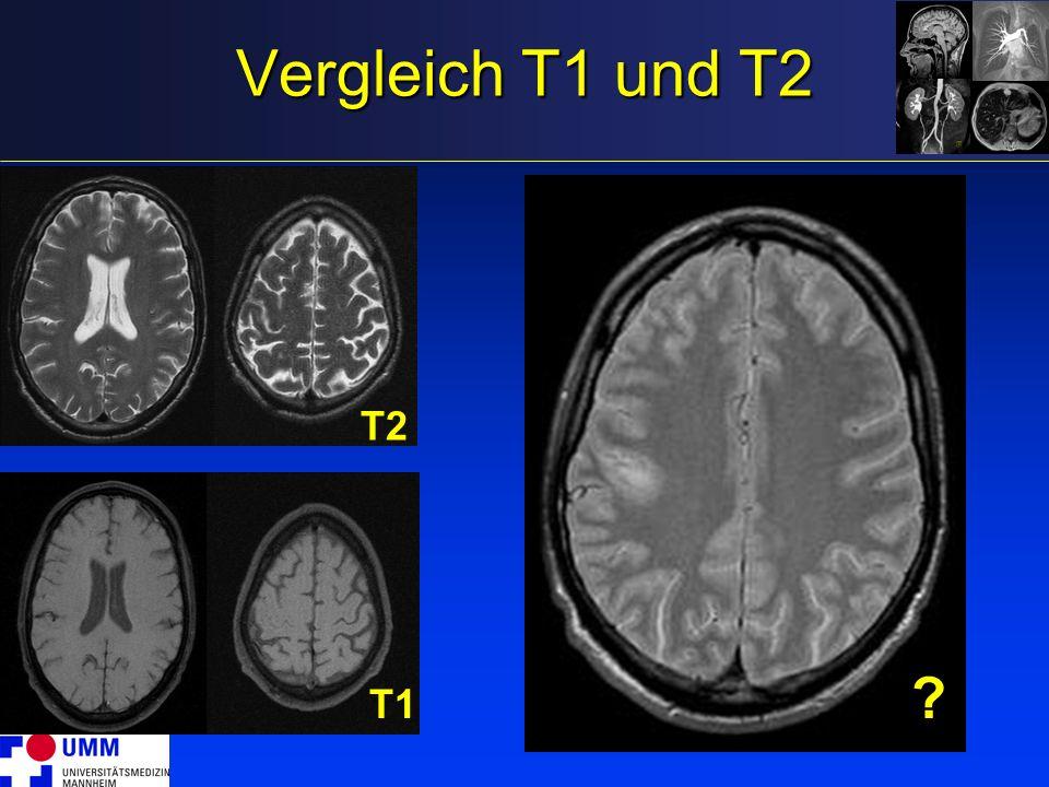 Vergleich T1 und T2 T1 T2 ?