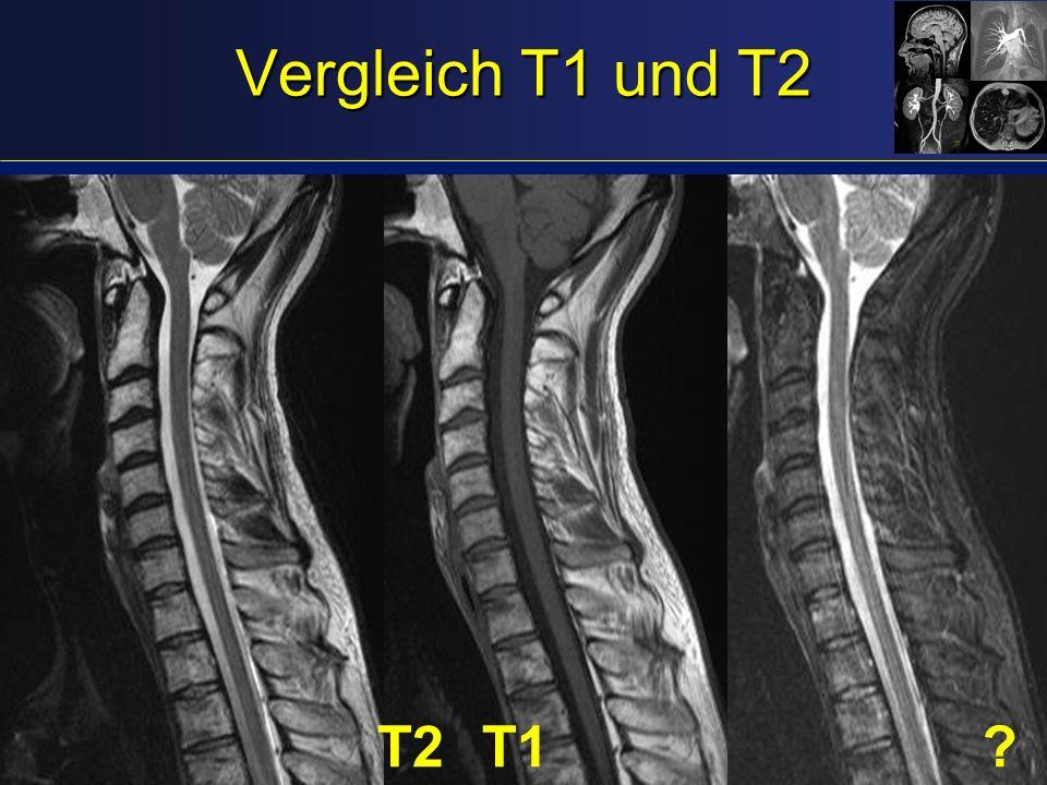 Vergleich T1 und T2 T2T1?