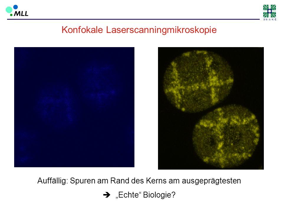 S N A K E Konfokale Laserscanningmikroskopie Auffällig: Spuren am Rand des Kerns am ausgeprägtesten Echte Biologie?