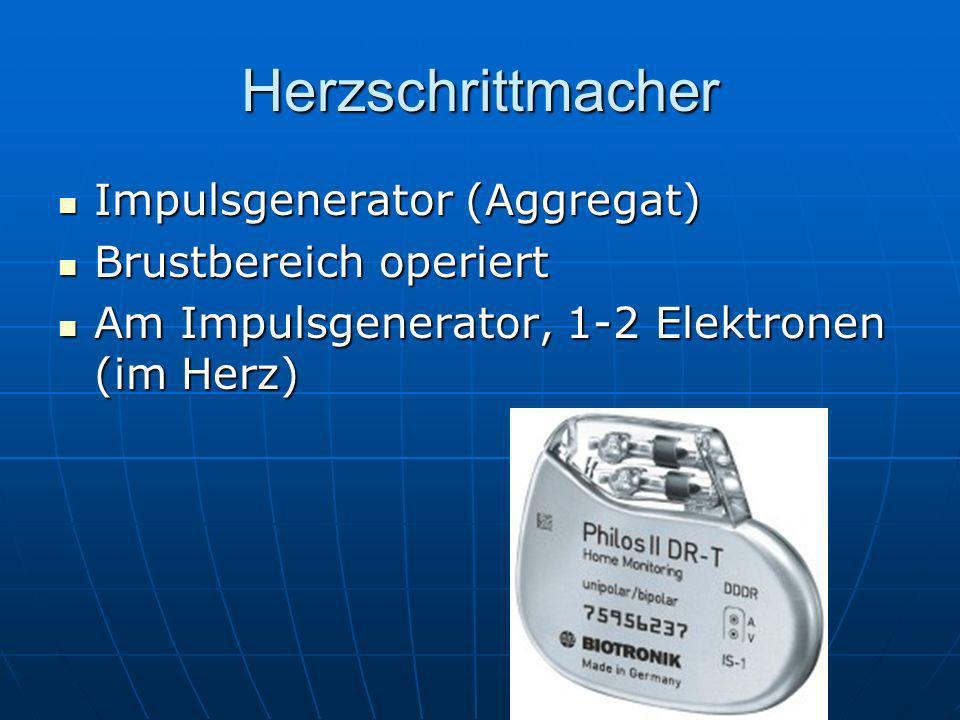 Herzschrittmacher Impulsgenerator (Aggregat) Impulsgenerator (Aggregat) Brustbereich operiert Brustbereich operiert Am Impulsgenerator, 1-2 Elektronen