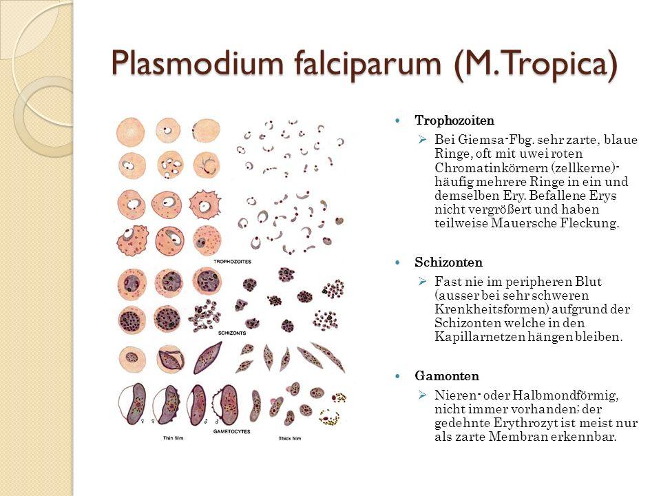 Plasmodium falciparum (M.Tropica) Trophozoiten Bei Giemsa-Fbg. sehr zarte, blaue Ringe, oft mit uwei roten Chromatinkörnern (zellkerne)- häufig mehrer