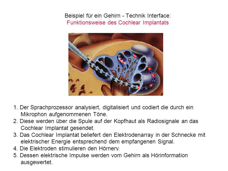 Beispiel für ein Gehirn - Technik Interface: Funktionsweise des Cochlear Implantats 1. Der Sprachprozessor analysiert, digitalisiert und codiert die d