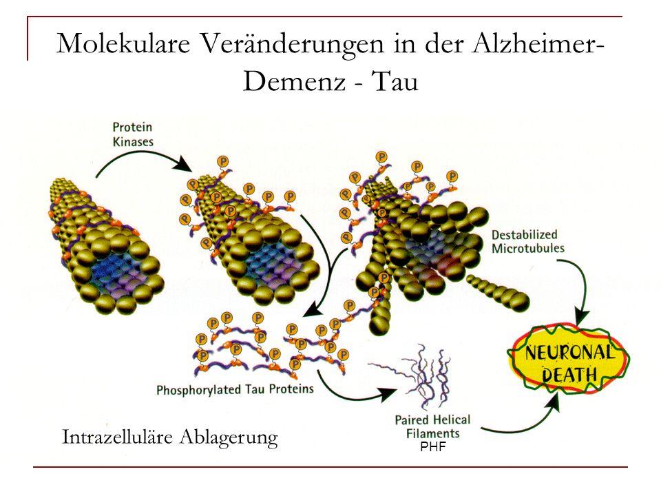 Molekulare Veränderungen in der Alzheimer- Demenz - Tau PHF Intrazelluläre Ablagerung