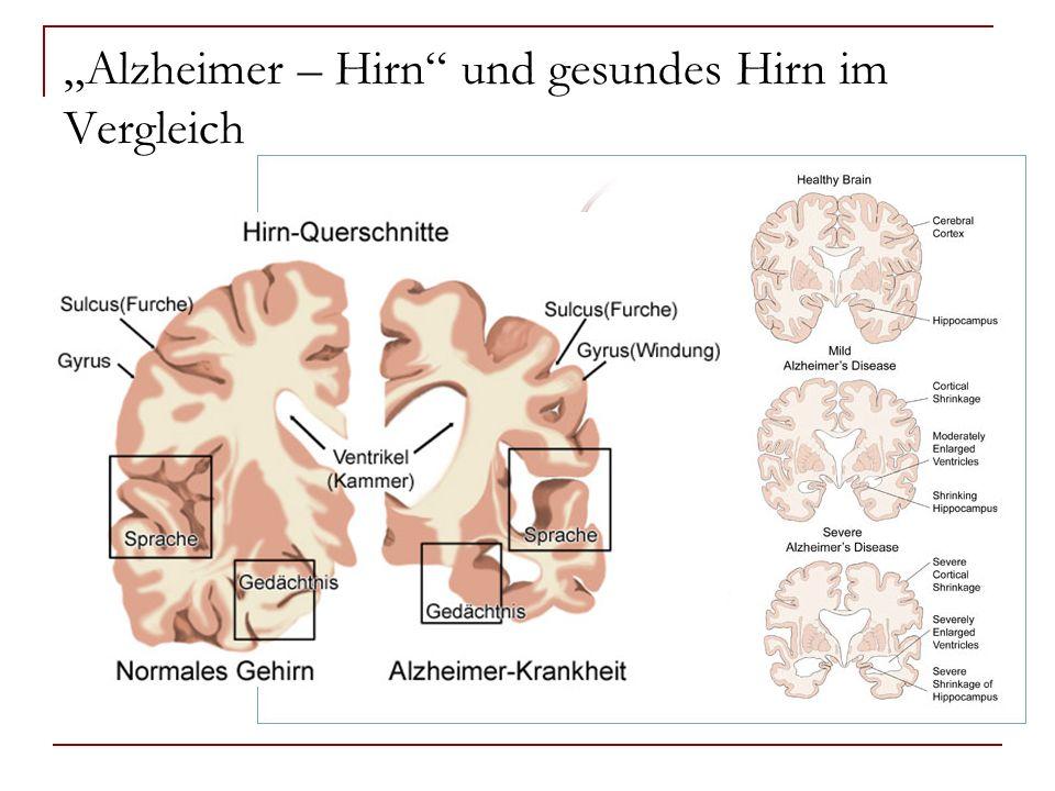 Alzheimer – Hirn und gesundes Hirn im Vergleich