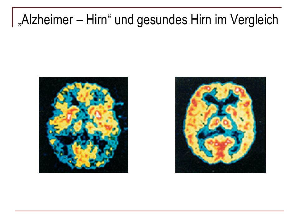 Amyloidplaques im Alzheimer – Hirn